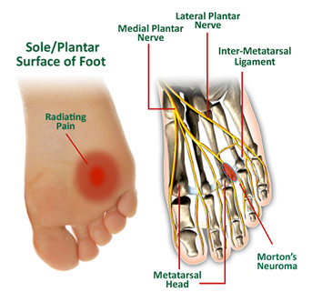 Common Conditions - Mortons Neuroma