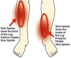 Common Conditions - Shin Splints